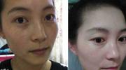 祛斑哪复杂?广州52岁保姆每天用它,皮肤嫩白细腻