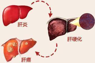 """世界肝炎日:从肝炎到肝癌只有""""三步"""" - 双梅 - 张静华"""