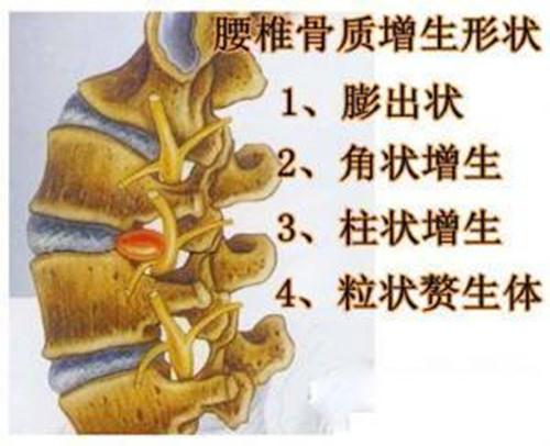 腰椎骨质增生症状详解与治疗方案 - 周公乐 - xinhua8848 的博客