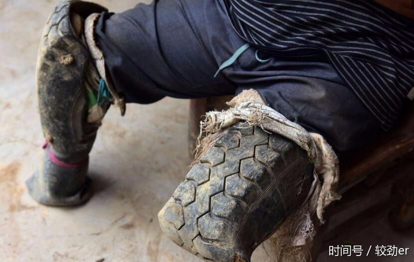 轮胎哥 42年一直用轮胎当脚 三年用坏一套 -  - 真光 的博客