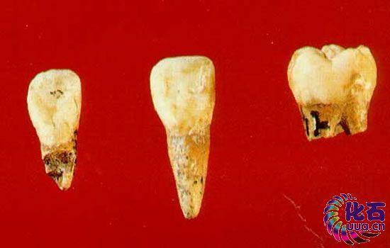 儿童牙齿结构示意图