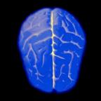 逻辑测试 - QI Test