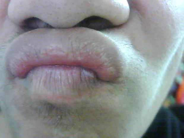 和嘴唇也有小泡泡.到底是怎么了?