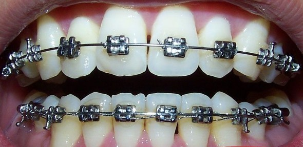 牙齿矫正的年龄:  女孩子10-12岁矫正最好