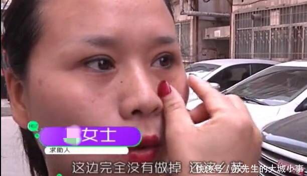 女子花4万块去眼袋秒变熊猫眼,网友:丑人多作