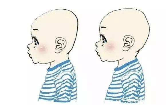 头型哪种新手好看?给宝宝睡出好妈妈,宝宝头型欧莱雅水润烫发好吗图片