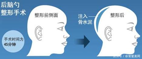 【转载】后脑勺骨水泥填充术到底怎么手术,安全度高吗?